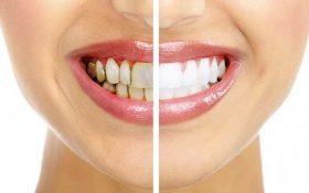 با این 13 پیشنهاد می توانید در خانه به آسانی دندان های سفید تری داشته باشید!