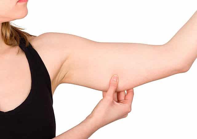 افتادگی پوست بعد از لاغری را چگونه درمان کنیم؟