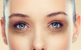 دلایل سیاهی  و کبودی زیر چشم چیست ؟ و راه کار هایی برای درمان آن !