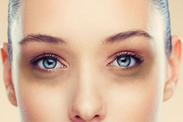 سیاهی و کبودی زیر چشم