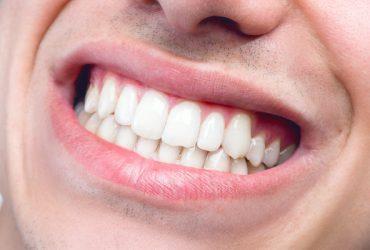 آیا می دانستید پوسیدگی دندان سبب بیماری روماتیسم می شود؟!!
