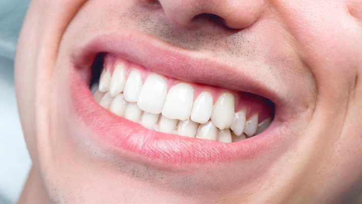 پوسیدگی دندان سبب بیماری روماتیسم