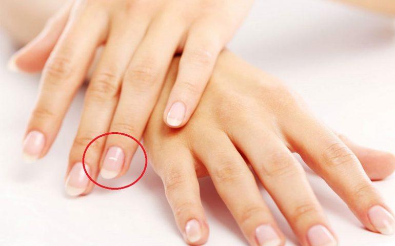 لکه های سفید بر روی ناخن