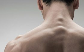 راهکارهای طبیعی برای از بین بردن جوش های ناحیه کمر و گردن