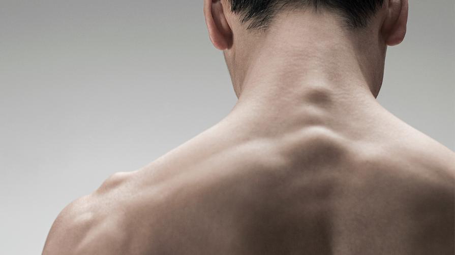 جوش های ناحیه کمر و گردن