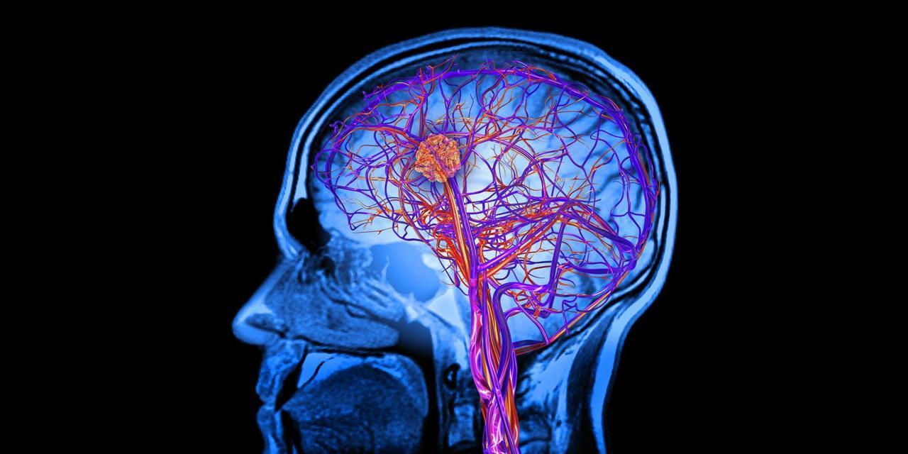 حفظ سلامت مغز