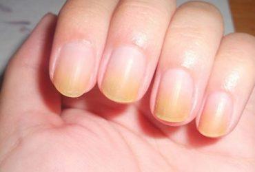دلایل زرد شدن ناخن ها و راهکارهای درمان آن