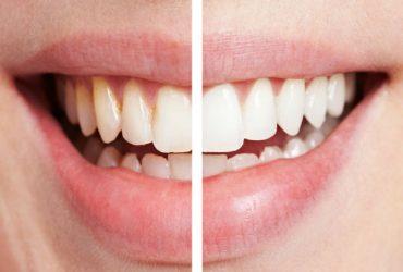 8 اشتباه رایج که هر روز در مراقبت از دندان ها انجام می دهیم !