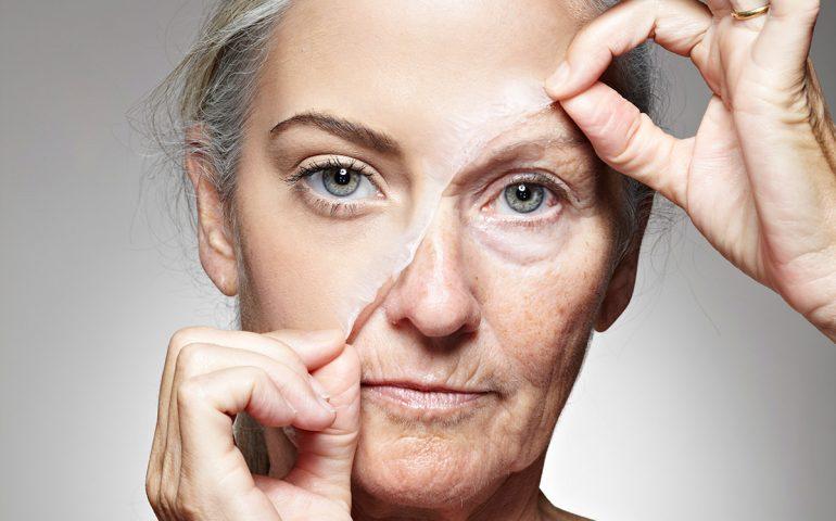 درمان ترک های پوستی در منزل