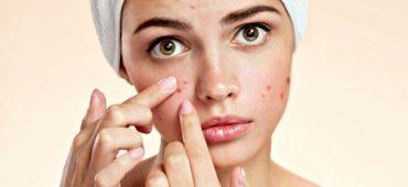 آیا افسردگی شما نتیجه آکنه های پوست تان است؟
