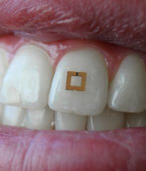 سنسور زیست پاسخگو متصل شونده به دندان هر چه را که می خورید اندازه گیری می کند