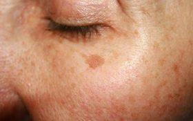 لک های قهوه ای بر روی پوست شما نشان دهنده کدام بیماری ها هستند ؟
