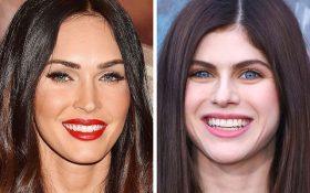 چگونه عمل های زیبایی در میان افراد مشهور هم سن تفاوت ایجاد می کند ؟