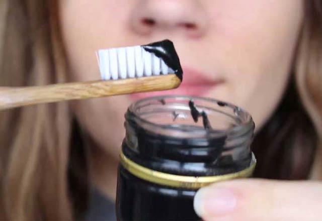 از بین بردن لک و جرم دندان