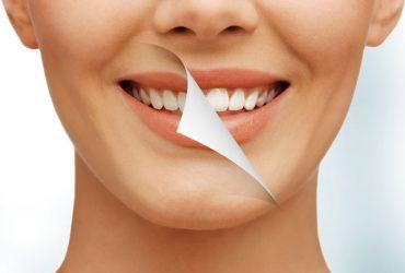 از بین بردن لک حاصل از سیگار و قهوه بر روی دندان !