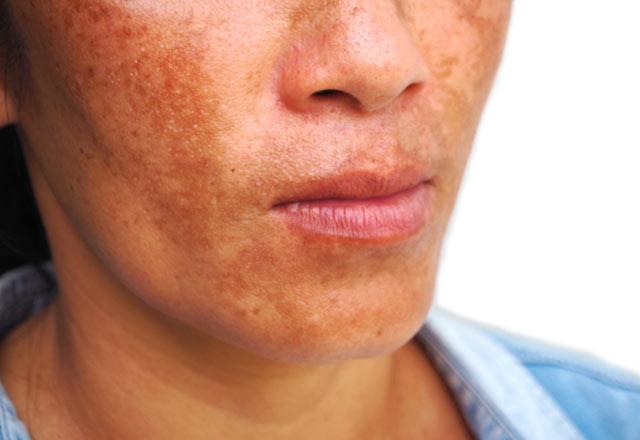 لکه های پوستی مهم در تابستان