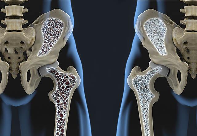 7 عادت مضر برای سلامتی استخوان