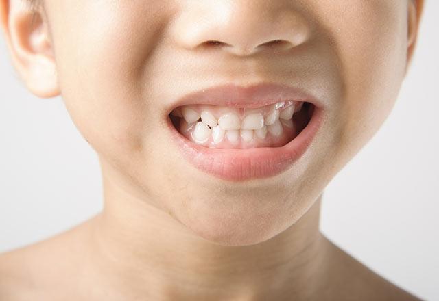دلایل فشار دادن دندان ها یا دندان قروچه