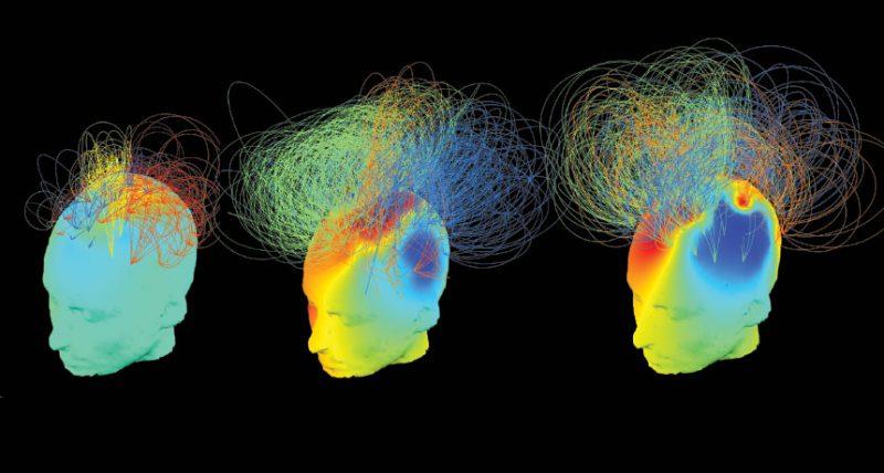 تغییر فرایند تصمیم گیری در مغز با استفاده از امواج اولتراسوند با شدت کم