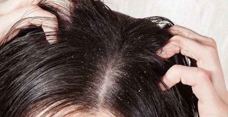 روش های طبیعی برای از بین بردن شوره سر