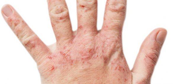 روش های طبیعی برای درمان اگزما دست ها