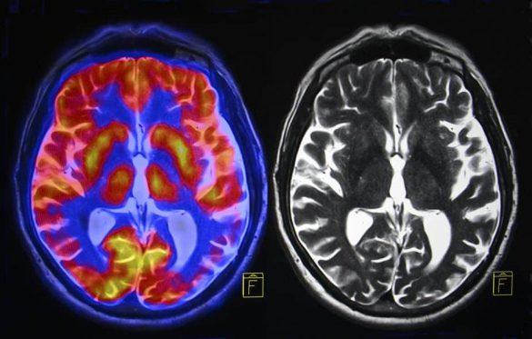 مضرات استرس مزمن بر مغز