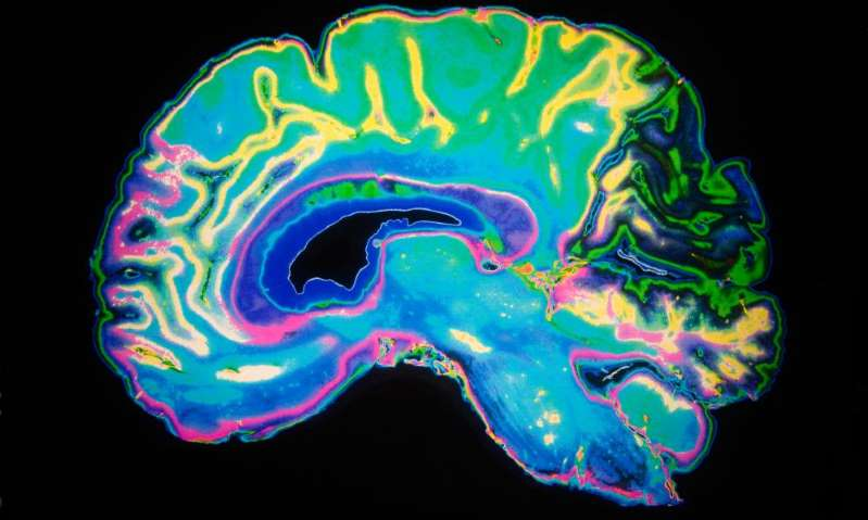 تاثیر کرونا بر مغز