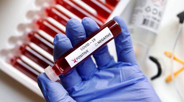 ماندگاری ویروس کرونا در بدن