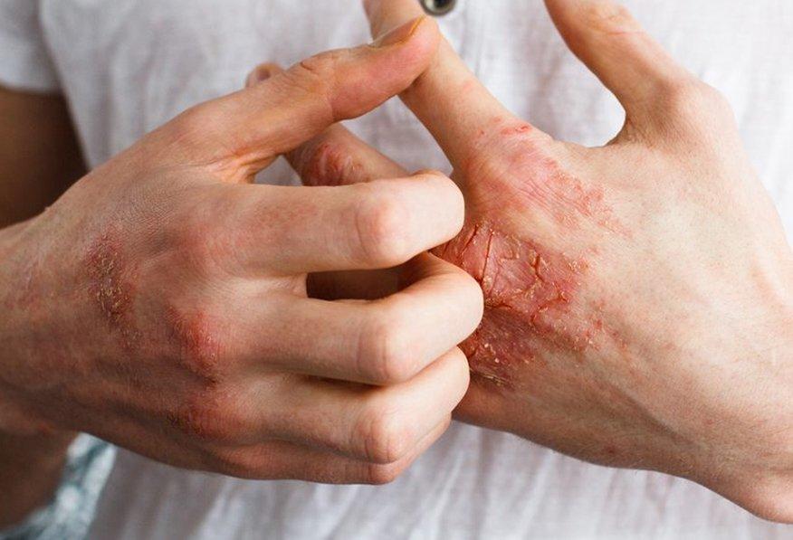 آلرژی و راه های درمان خانگی